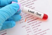 Monmouth County NJ Lead Poisoning Attorneys